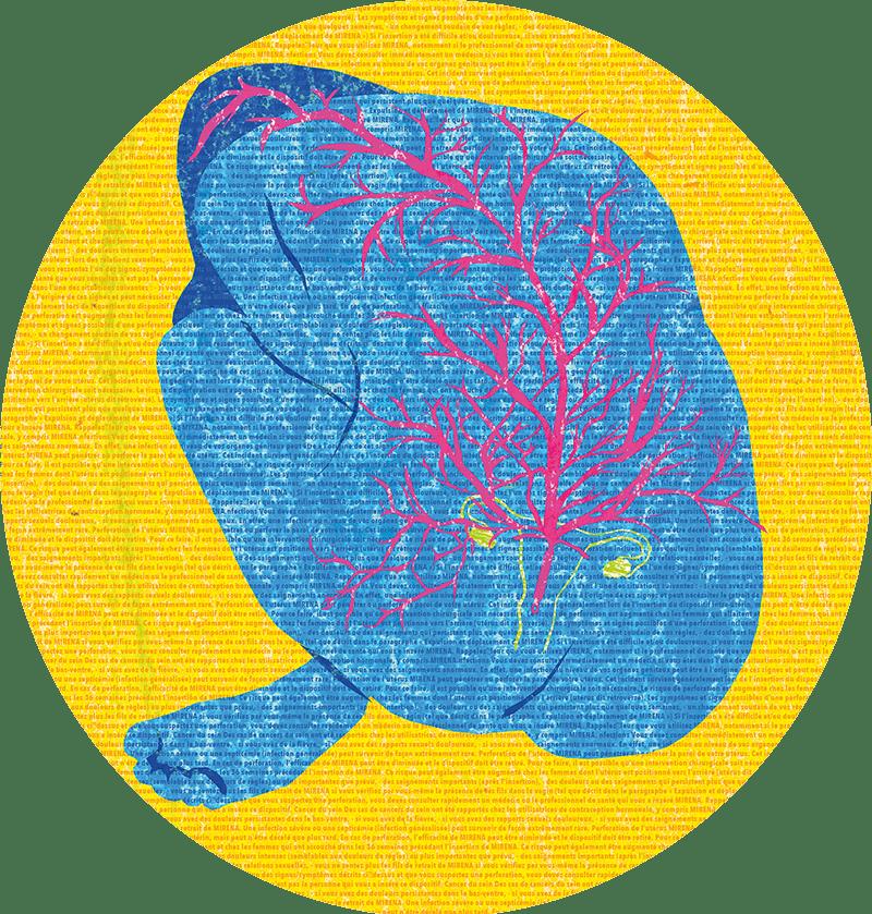 Stérilet Mirena: des femmes dénoncent les effets secondaires